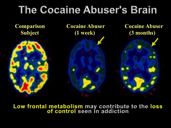 addicted to cocaine